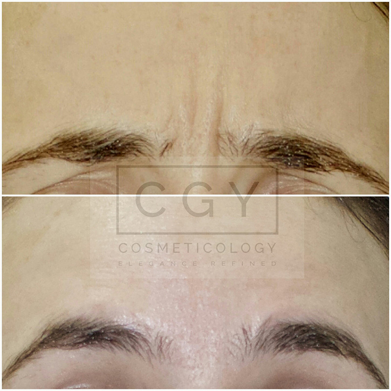 Anti-wrinkle injections of the brow