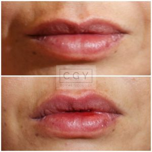 lips2collage